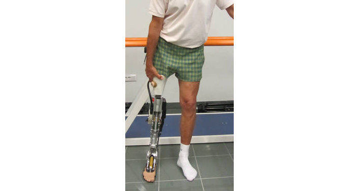 La protesi transfemorale attiva
