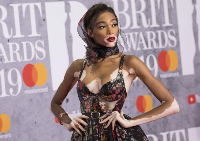 La modella Winnie Harlow alla cerimonia Brit Awards a Londra.