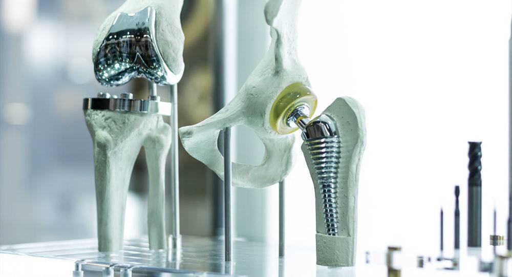 Le  articolazioni artificiali