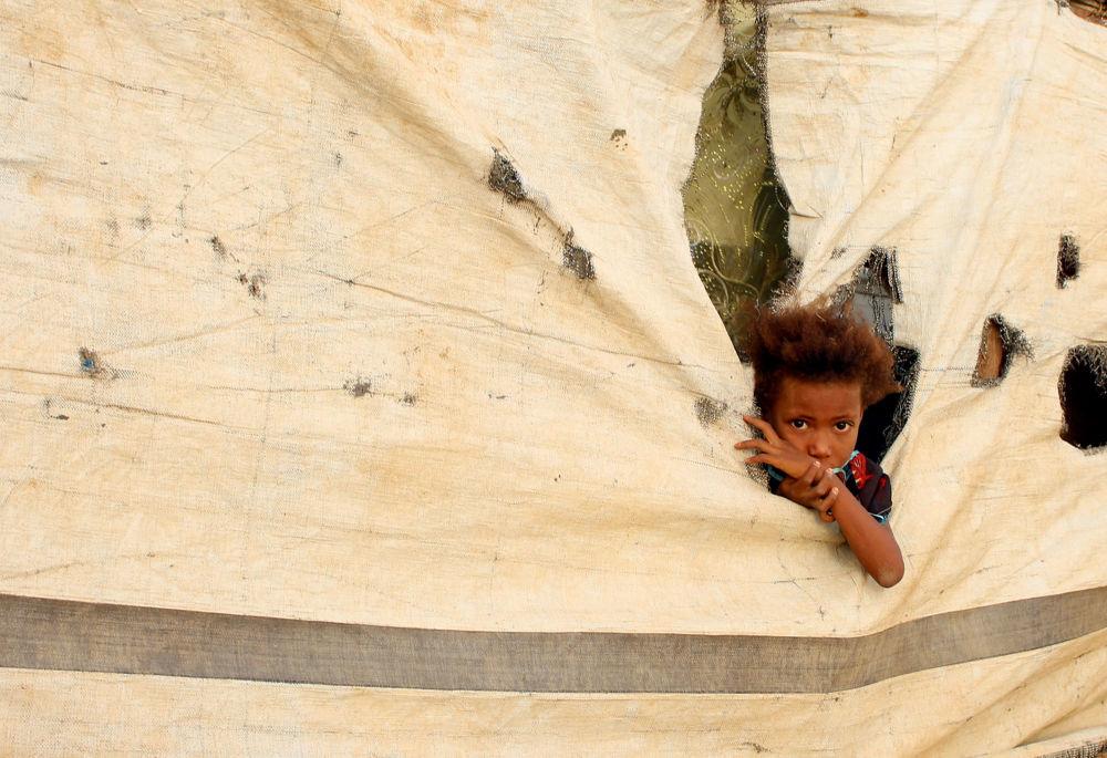 Una bambina in un campo profughi ad Abs, Yemen.